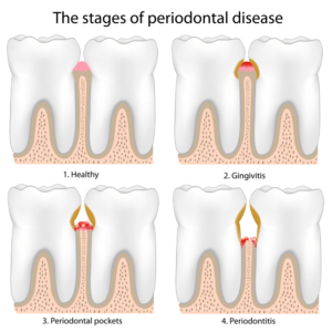 periodontal-stages
