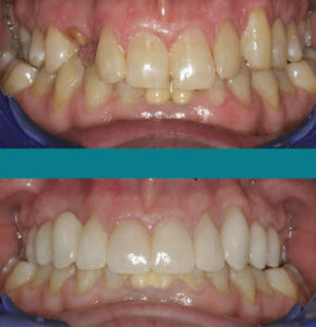 Waxhaw Dentist Before After