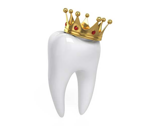 What's the black line by my crown? - New Town Dentistry